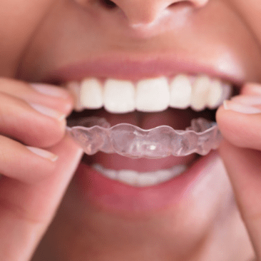 clear aligners-min